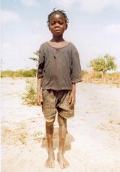 Parrainages d'enfants au Burkina