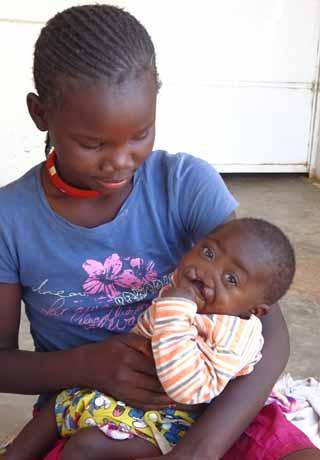 Bébé atteint d'un bec-de-lièvre recueilli au Village d'Enfants Bumi de Karavia en RD Congo